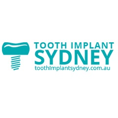 Tooth Implant Sydney Offers Easy and Pain-Free Dental Implants Procedure