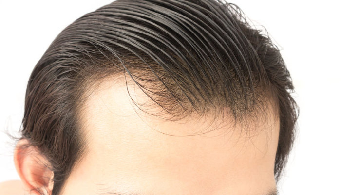 RealtimeCampagin.com Explains How to Choose Men\'s Hair Products for Thinning Hair