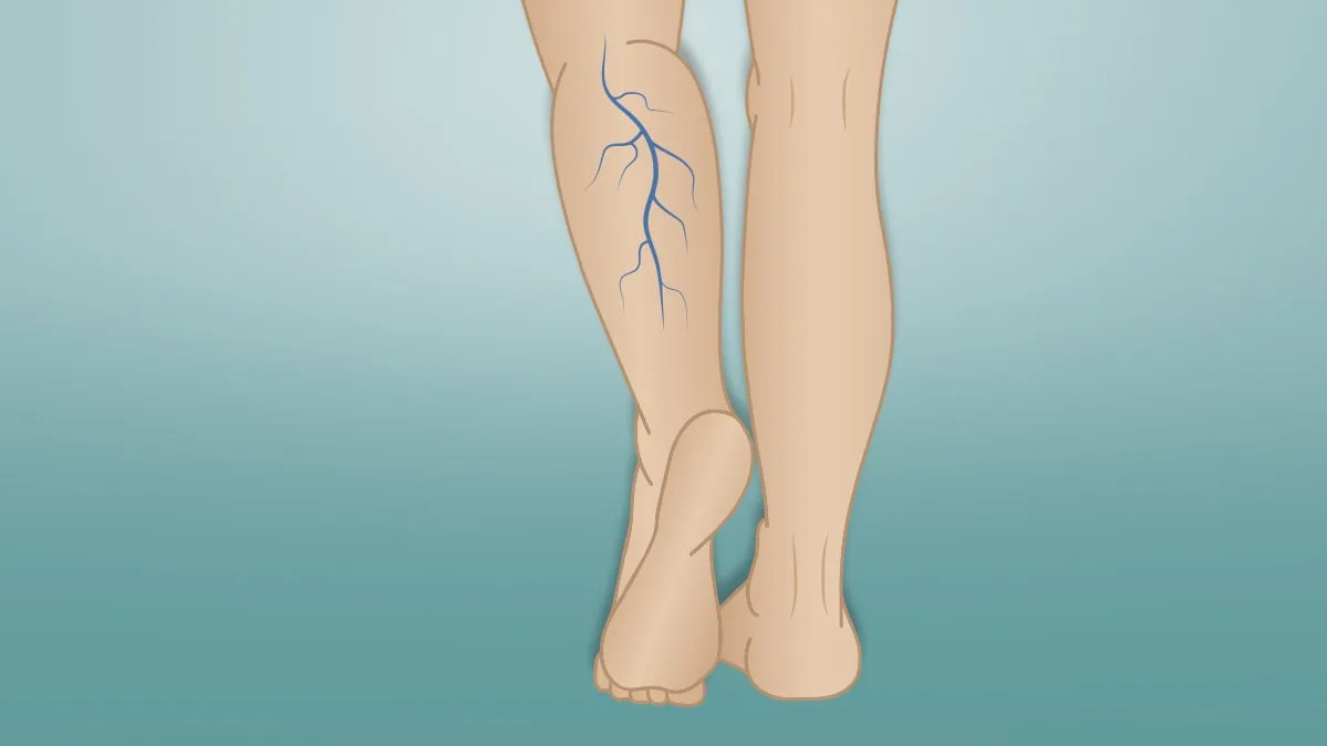 Varicose Veins Are Uncomfortable, But They Can Be Cured