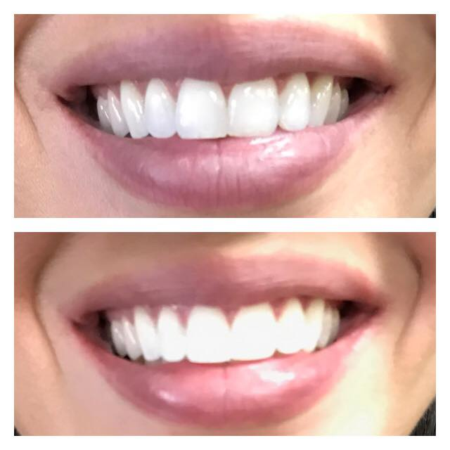 Shimmer Nails & Hair Now Offering Teeth Whitening Services