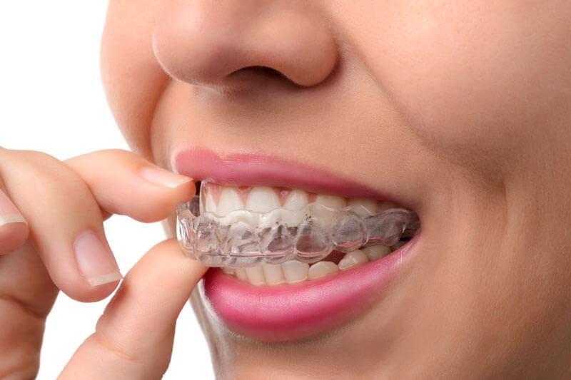 An Excellent Dental Practitioner Offering Free Consultation at Encino Dental Studio